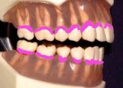 yjimage顎模型